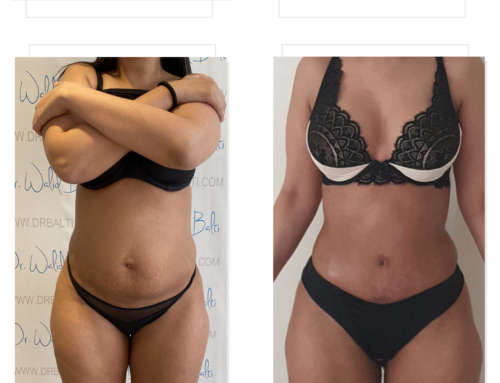 Liposculpture and tummy tuck