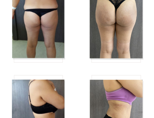 Liposuction 360 and Brazilian Butt Lift