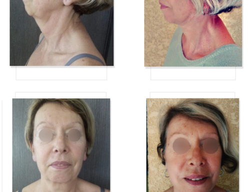 Facelift, chin and cheek augmentation with fat transfer