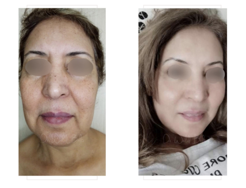 Facelift, facial fat grafting, neck lift and neck liposuction