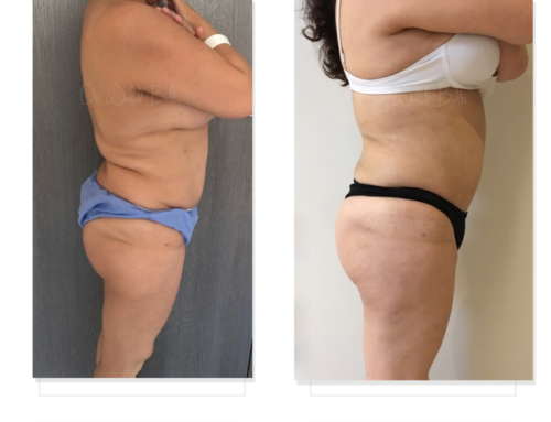 Revision of liposuction and brazilian butt lift performed by another surgeon