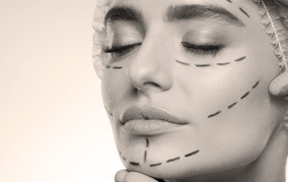 cervico facial lift tunisia