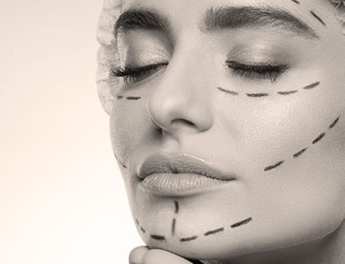 Cervico-facial lift : when it is performed and how