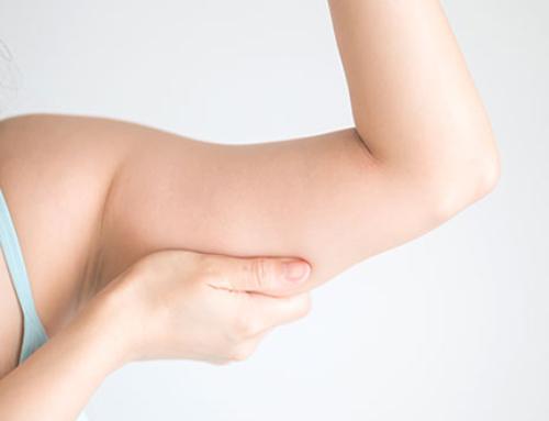 What is brachioplasty ?