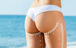liposuction saddlebags