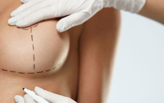 Breast lift or augmentation