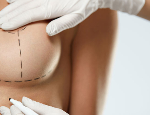 Breast lift or augmentation ?