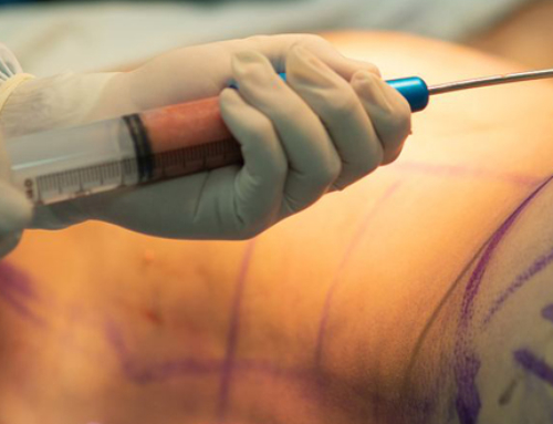 Myths about liposuction you should not believe
