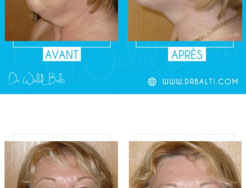 Facelift, neck liposuction & blepharoplasty