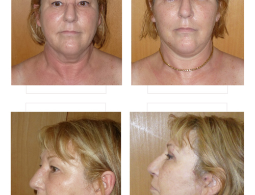 Facelift, neck liposuction & blepharoplasty