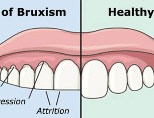 Is Botox really used to treat bruxism ?