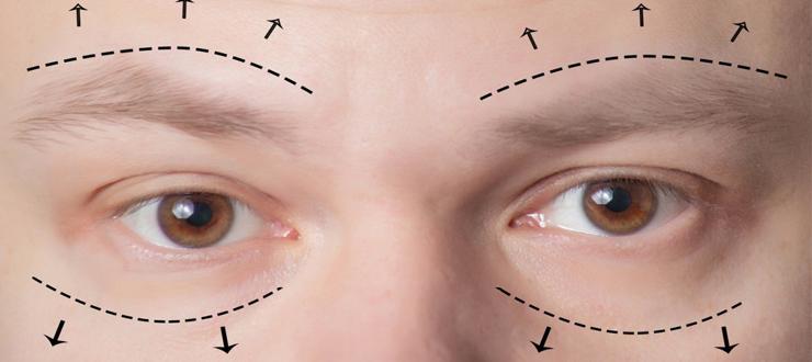 eyelid surgery tunisia