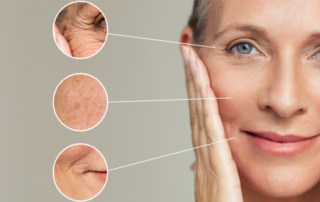 Treatment wrinkles facial volume loss