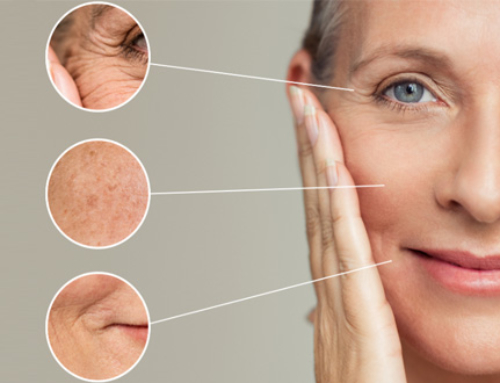Treatment options for wrinkles, facial volume loss and other aging signs