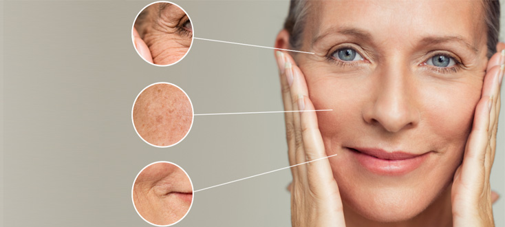 Treatment wrinkles facial volume loss
