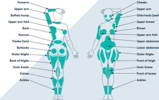 liposuction areas