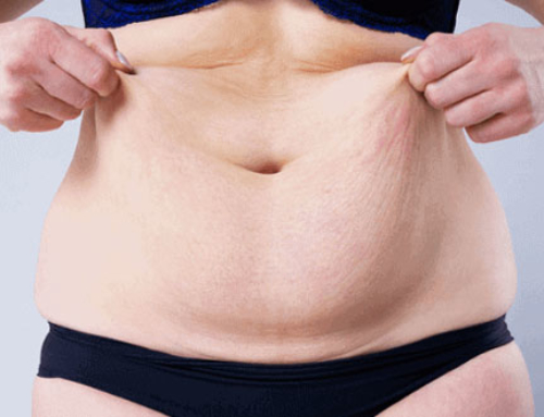 Different tummy tuck cases