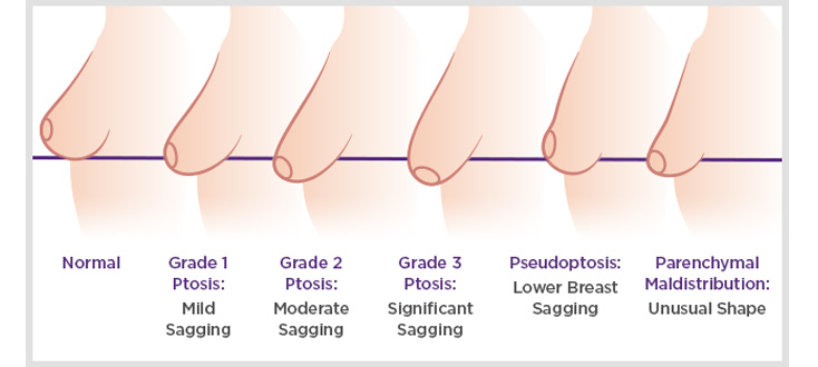 ptosis surgery breast lift