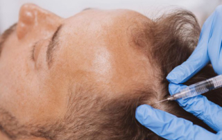 PRP and cosmetic surgery