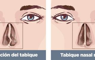 septum-deviation-surgeryr-tunisia