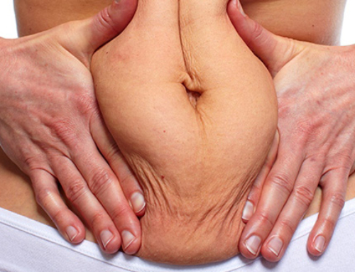 Tummy tuck after gastric sleeve