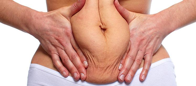 tummy-tuck-after-gastric-sleeve-tunisia