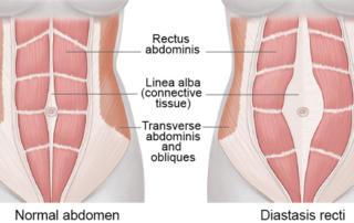 Everything you need to know about Diastasis recti