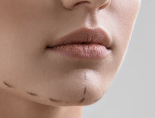 Correcting chin defects with a non-invasive or surgical treatment