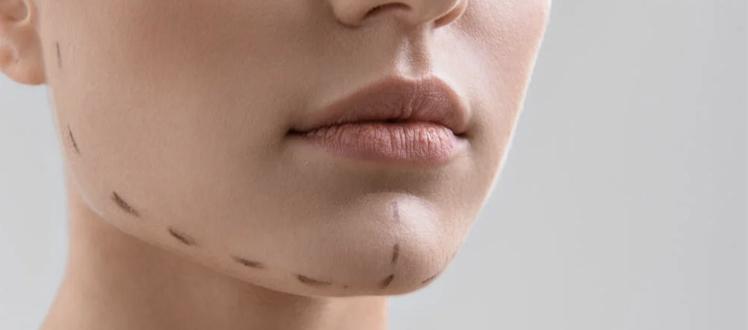 Correcting chin defects tunisia