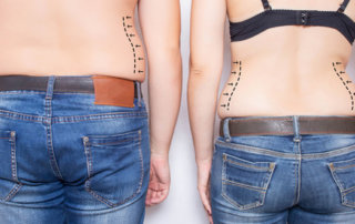 Is liposuction efficient against love handles ?