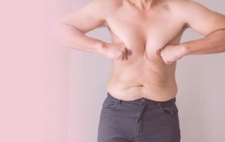 questions about gynecomastia and pseudogynecomastia