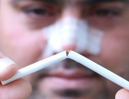 Do I have to stop smoking before and after nose surgery ?