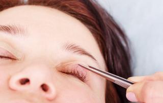 surgery eyelid tunisia