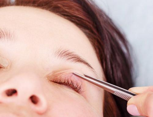Rejuvenating the eyelids : choosing the right treatment