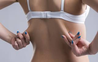 Treating the bra bulge
