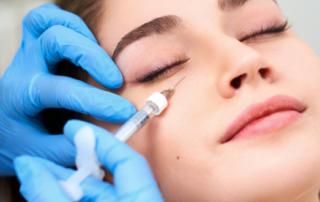 treating circles around eyes HA injections