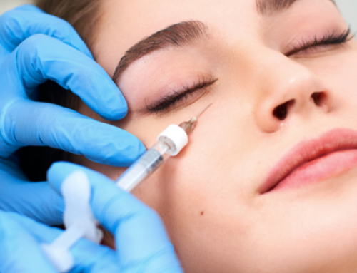 Treating circles around the eyes with HA injections