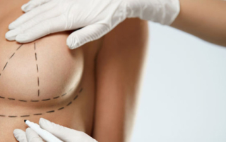 Breast-reduction-augmentation-which-size-the-most-common