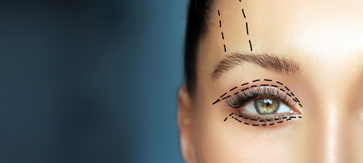 Answering frequently asked questions about blepharoplasty
